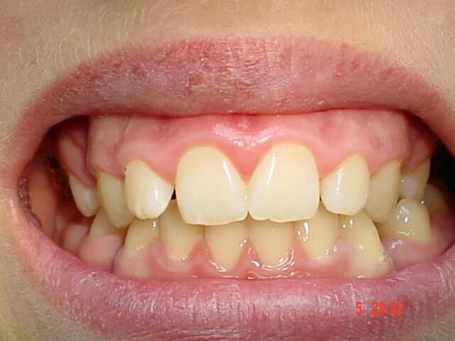 classique1-dentist-moulin-gembloux.jpg