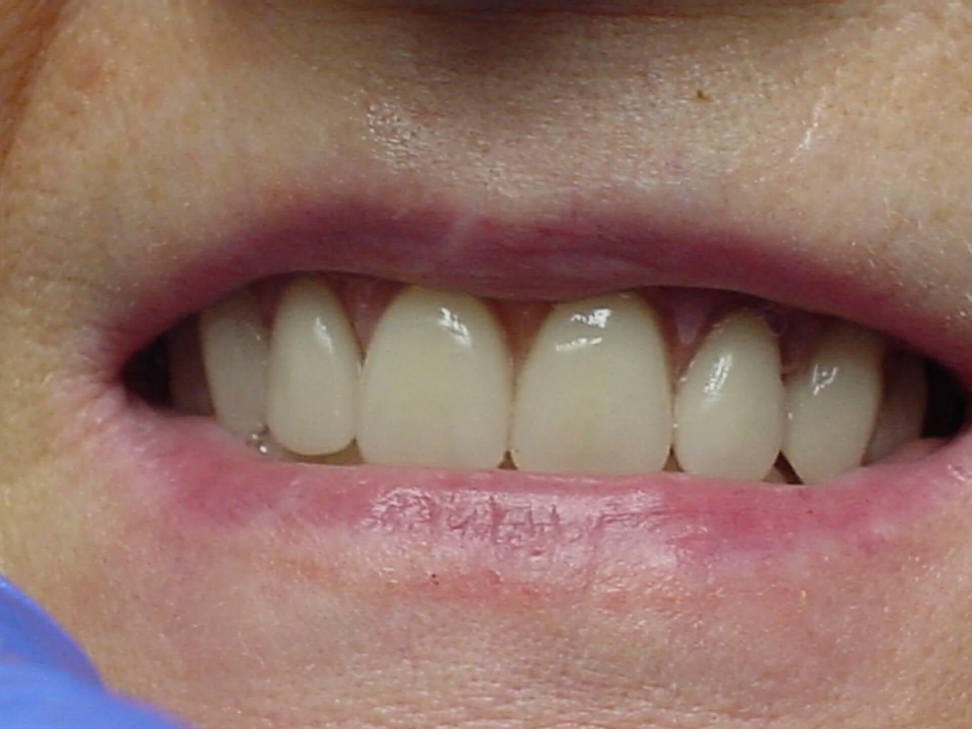 classique3-dentist-moulin-gembloux.jpg