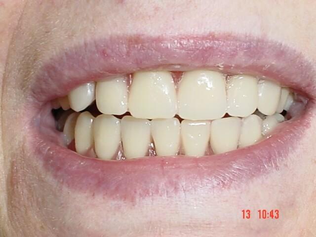 classique4-dentist-moulin-gembloux.jpg