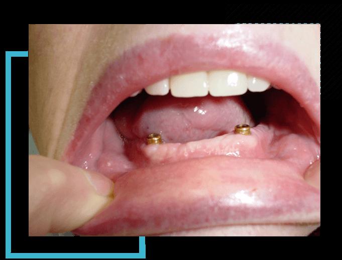 image1-impl-dentist-moulin-gembloux
