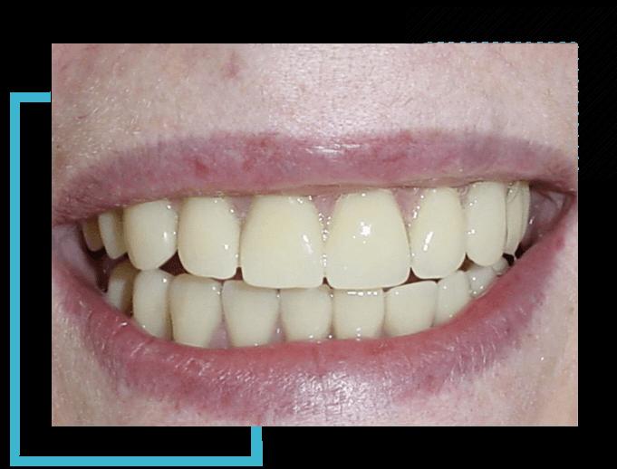 image1-impl-hover-dentist-moulin-gembloux