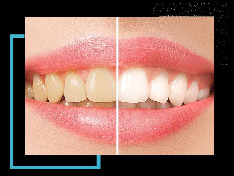 image4-blanch-hover-dentist-moulin-gembloux (1)