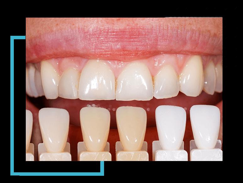image4-blanche-dentist-moulin-gembloux (1)