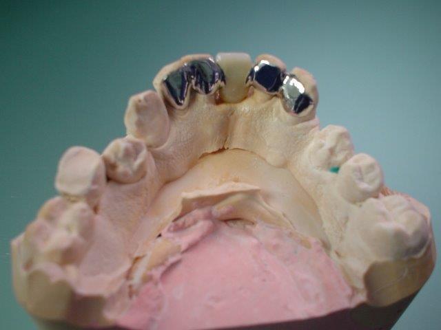 autre-soins-dentaires-belgique (1)