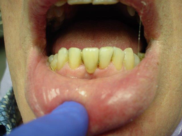 autre-soins-dentaires-belgique (3)