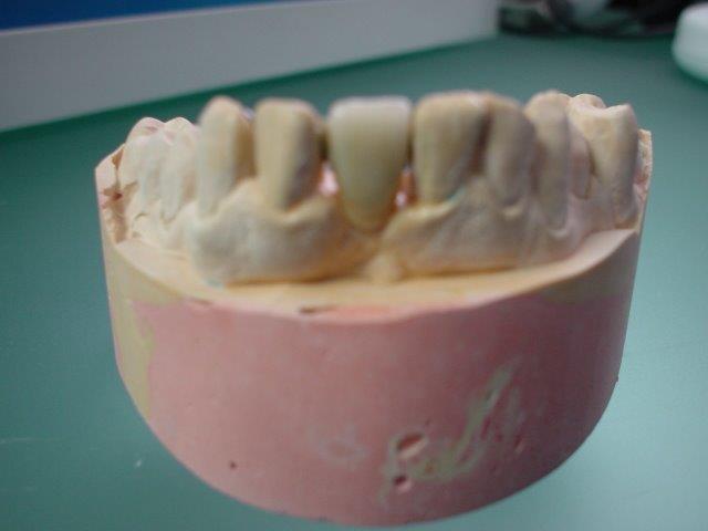 autre-soins-dentaires-belgique (5)