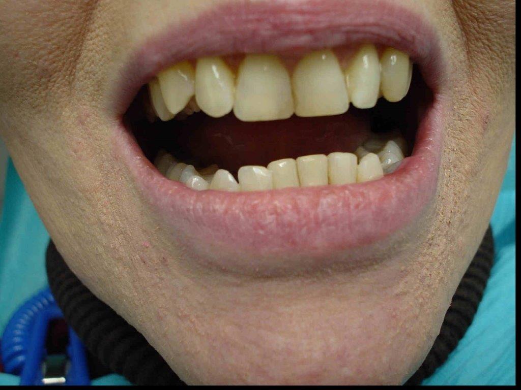 autre-soins-dentaires1-belgique (1)