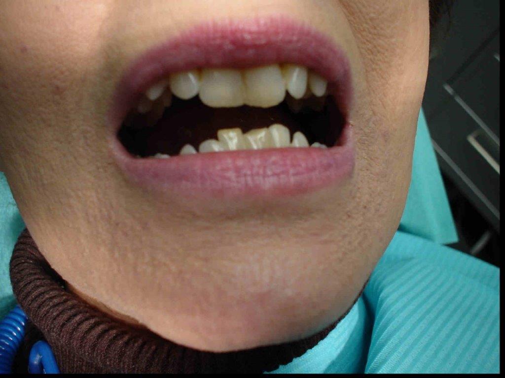 autre-soins-dentaires1-belgique (2)