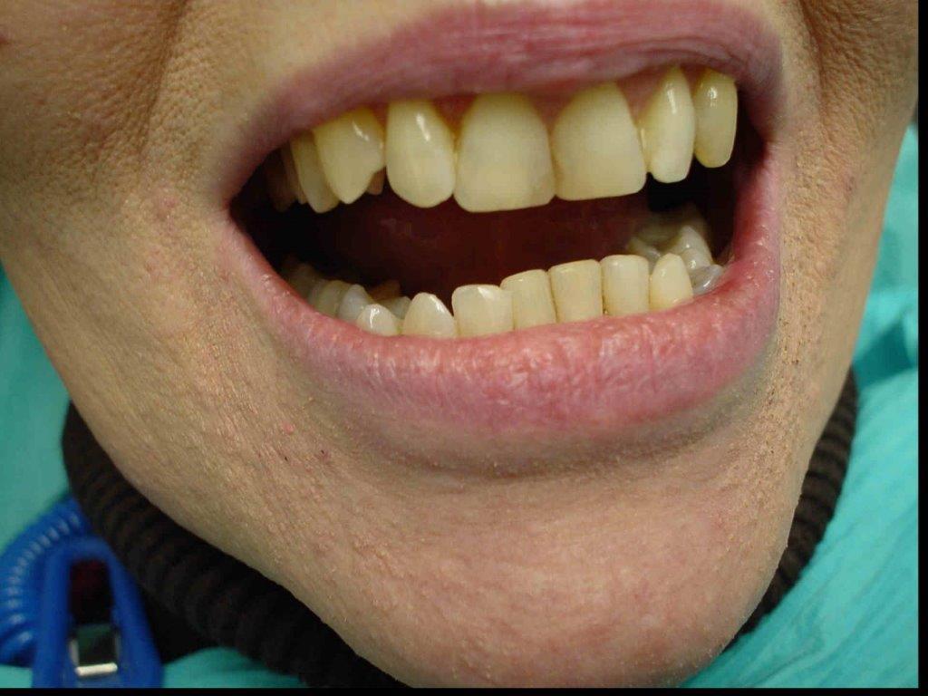 autre-soins-dentaires1-belgique (3)