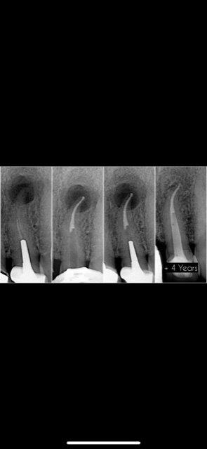conservateur-endodontie-belgique (1)