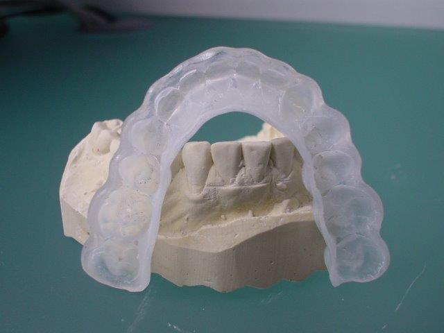 dentiste-gouttiiees-belgique (2)