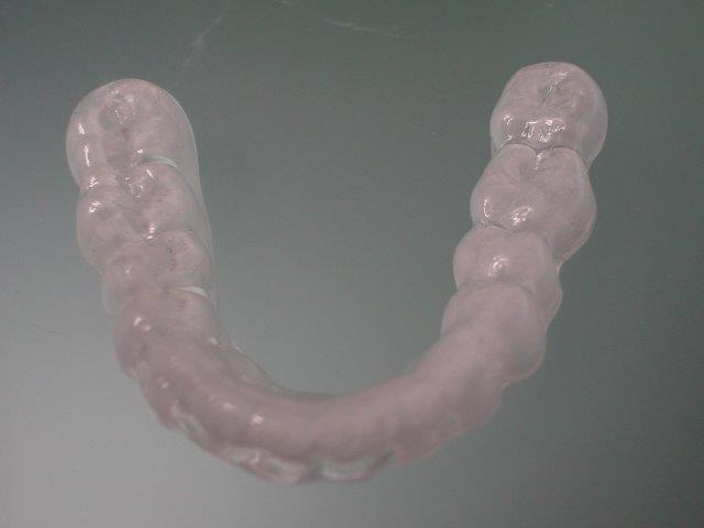 dentiste-gouttiiees-belgique (3)