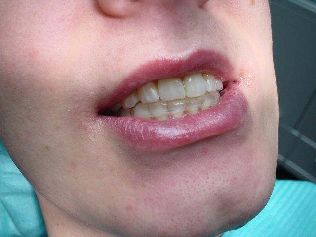 dentiste-gouttiiees-belgique (4)