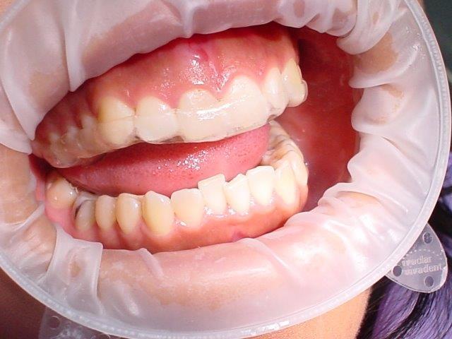 dentiste-gouttiiees-belgique (6)
