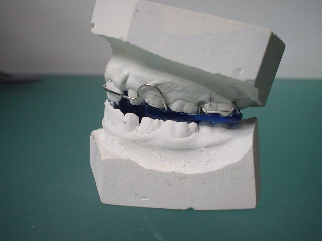 dentiste-orthodontie-belgique (1)