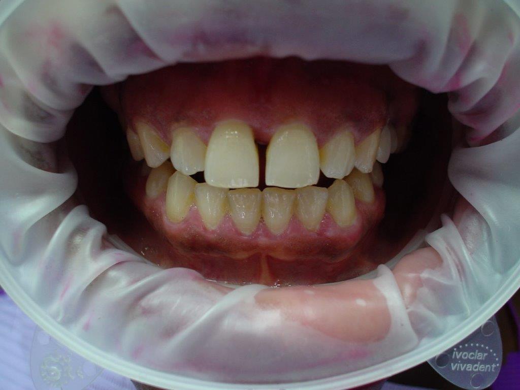 dentiste-soins-esthetique (1)