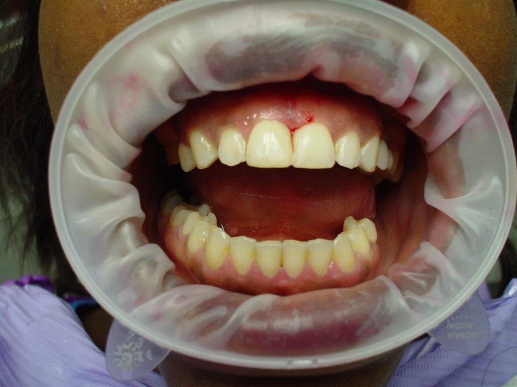 dentiste-soins-esthetique (2)