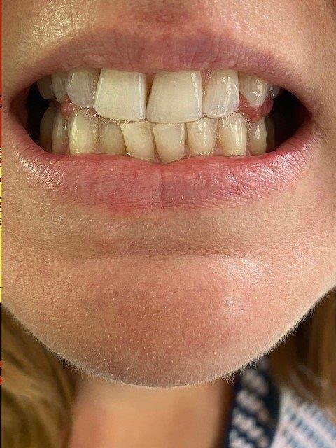 dentiste-bleaching