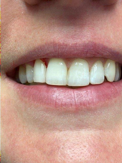 dentiste-bleaching2