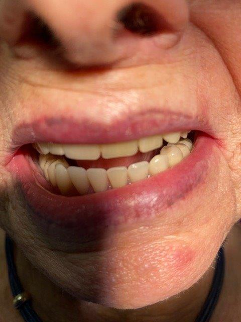 dentiste-hossay-belgique (8)