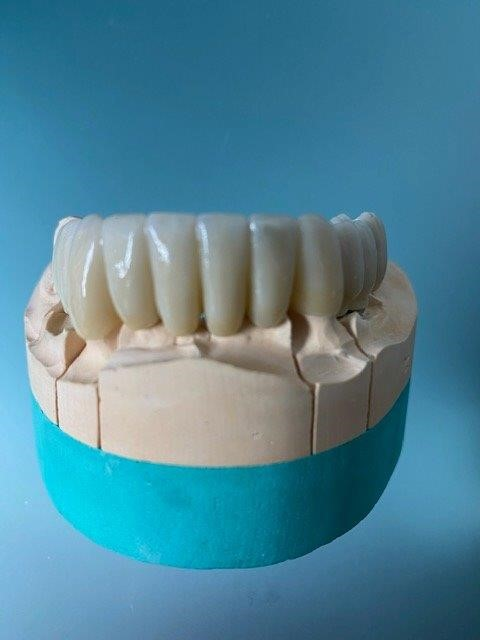 dentiste-hossay-implant-belgique (2)