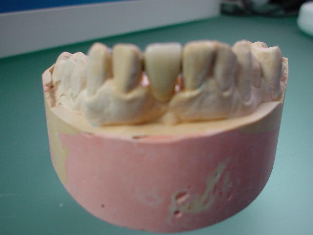 dentiste-hossay-solution-alternative-implant (3)
