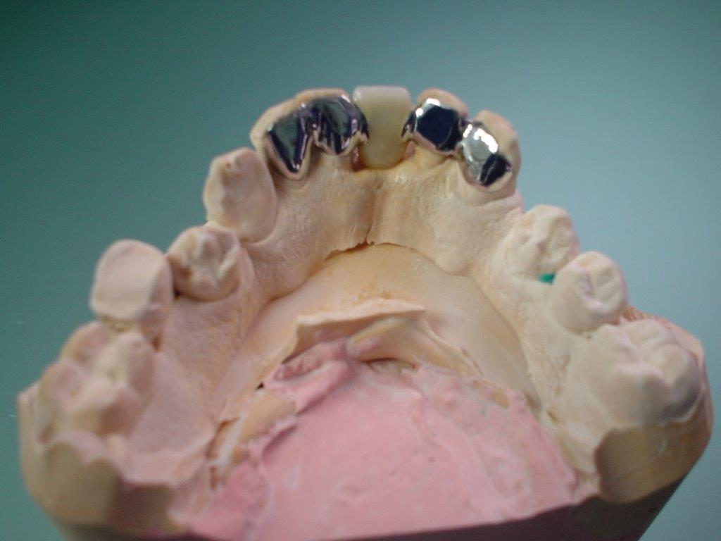 dentiste-hossay-solution-alternative-implant (4)